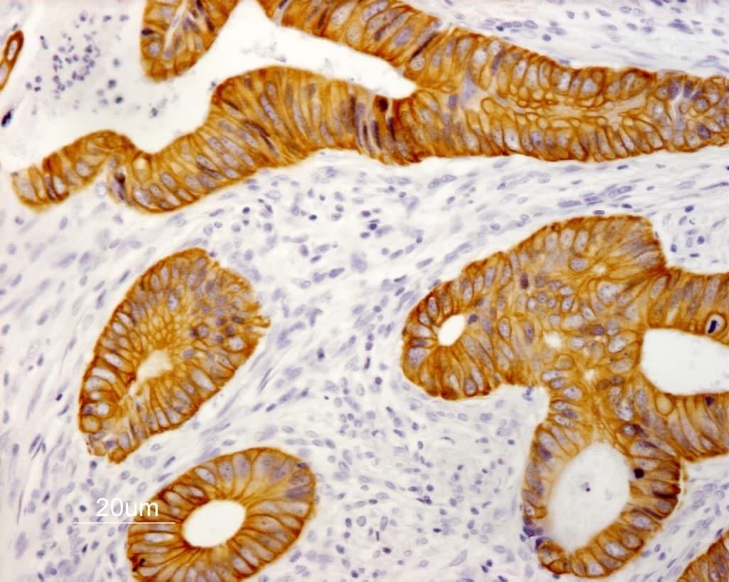 Immunohistochemistry (Formalin/PFA-fixed paraffin-embedded sections) - Anti-Cytokeratin 19 antibody [RCK108] (ab9221)