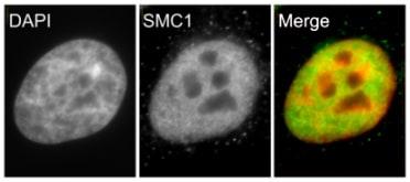 Immunocytochemistry - Anti-SMC1A antibody (ab9262)