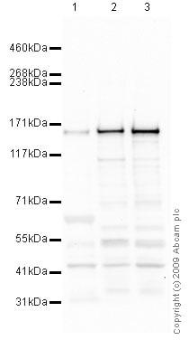 Western blot - Anti-SMC3 antibody - ChIP Grade (ab9263)