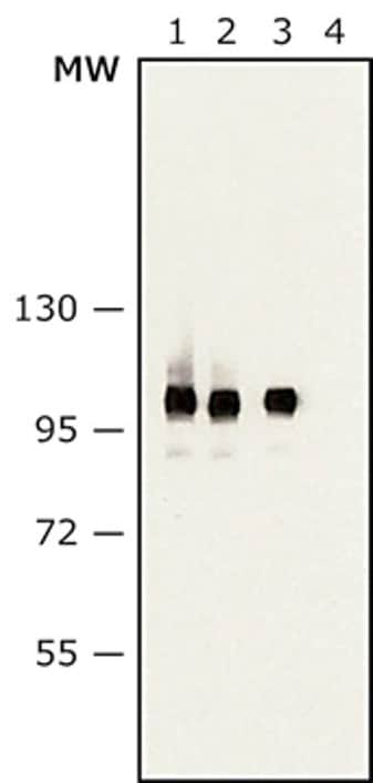Western blot - Anti-Sarcomeric Alpha Actinin antibody [EA-53] (ab9465)