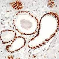 Immunohistochemistry (Formalin/PFA-fixed paraffin-embedded sections) - Anti-Androgen Receptor antibody [AR 441] (ab9474)