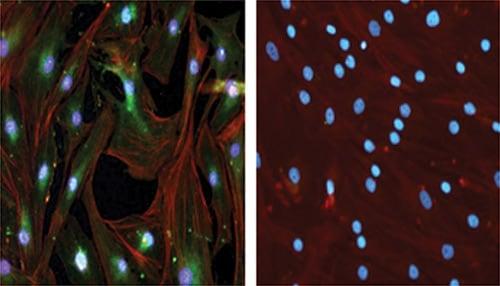 Immunocytochemistry/ Immunofluorescence - Anti-SDF1 antibody (ab9797)
