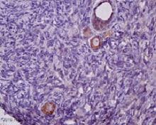Immunohistochemistry (Formalin/PFA-fixed paraffin-embedded sections) - Anti-SDF1 antibody (ab9797)