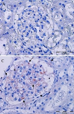 Immunohistochemistry (Formalin/PFA-fixed paraffin-embedded sections) - Mouse IgG1, Kappa Monoclonal [B11/6] - Isotype Control (ab91353)