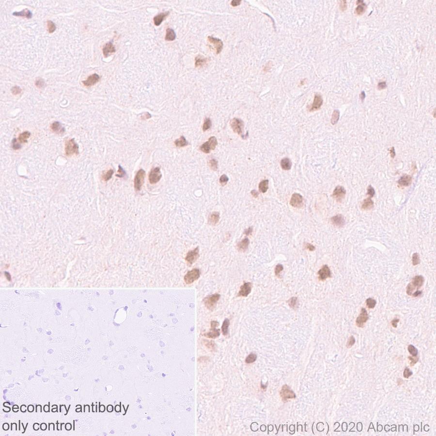 Immunohistochemistry (Formalin/PFA-fixed paraffin-embedded sections) - Anti-Menin antibody [EPR3986] (ab92443)