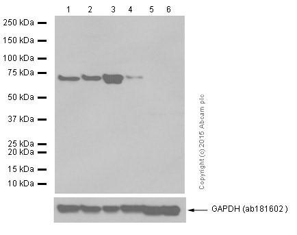 Western blot - Anti-PDZK1 antibody [EPR3751] (ab92491)