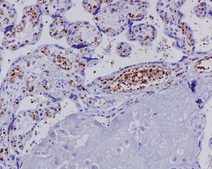 Immunohistochemistry (Formalin/PFA-fixed paraffin-embedded sections) - Anti-Hemoglobin subunit alpha antibody [EPR3608] (ab92492)