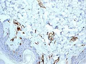 Immunohistochemistry (Formalin/PFA-fixed paraffin-embedded sections) - Anti-HLA-DR antibody [EPR3692] (ab92511)