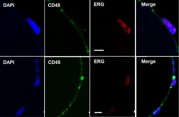 Immunocytochemistry/ Immunofluorescence - Anti-ERG antibody [EPR3864] (ab92513)