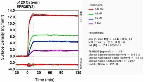 OI-RD Scanning - Anti-delta 1 Catenin/CAS antibody [EPR357(2)] (ab92514)