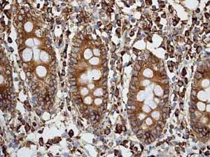 Immunohistochemistry (Formalin/PFA-fixed paraffin-embedded sections) - Anti-Calreticulin antibody [EPR3924] - ER Marker (ab92516)