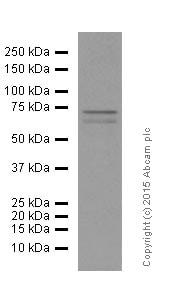 Western blot - Anti-MMP2 antibody [EPR1184] (ab92536)