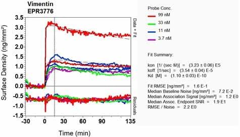 OI-RD Scanning - Anti-Vimentin antibody [EPR3776] - Cytoskeleton Marker (ab92547)