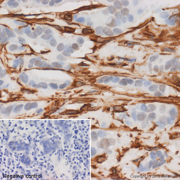 Immunohistochemistry (Formalin/PFA-fixed paraffin-embedded sections) - Anti-Vimentin antibody [EPR3776] - Cytoskeleton Marker (ab92547)