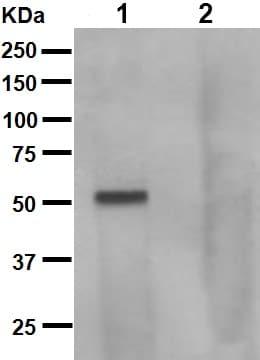 Western blot - Anti-Tau (phospho S262 + T263) antibody [EPR2454] (ab92627)