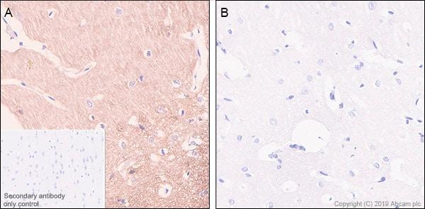 Immunohistochemistry (Formalin/PFA-fixed paraffin-embedded sections) - Anti-Tau (phospho S404) antibody [EPR2605] (ab92676)