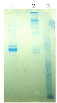 SDS-PAGE - Native Human Vitronectin/S-Protein (ab92683)