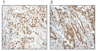 Immunohistochemistry (Formalin/PFA-fixed paraffin-embedded sections) - Anti-SMAD5 (phospho S463 + S465) antibody [MMC-1-104-3] (ab92698)