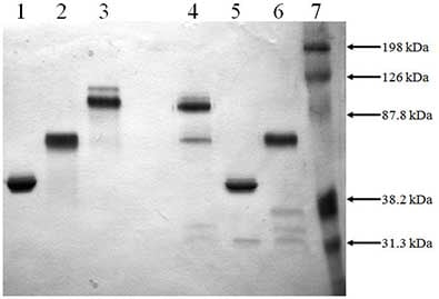 SDS-PAGE - Recombinant Mouse PAI1 + PLAT protein (ab92709)