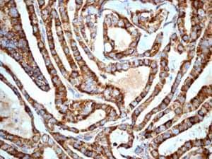 Immunohistochemistry (Formalin/PFA-fixed paraffin-embedded sections) - Anti-CD9 antibody [EPR2949] (ab92726)