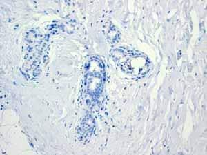 Immunohistochemistry (Formalin/PFA-fixed paraffin-embedded sections) - Anti-CGA/hCG alpha antibody [EP3373] (ab92738)