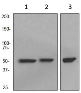 Western blot - Anti-CCT2 antibody [EPR4084] (ab92746)