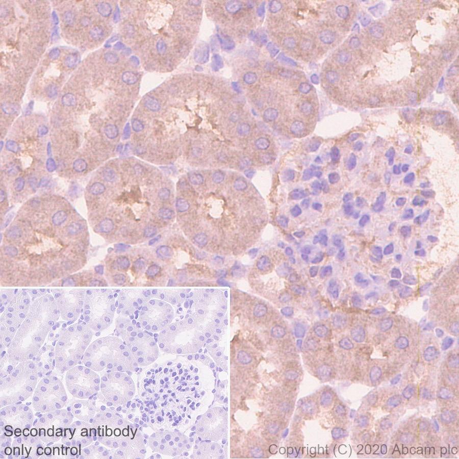 Immunohistochemistry (Formalin/PFA-fixed paraffin-embedded sections) - Anti-CCT2 antibody [EPR4084] (ab92746)