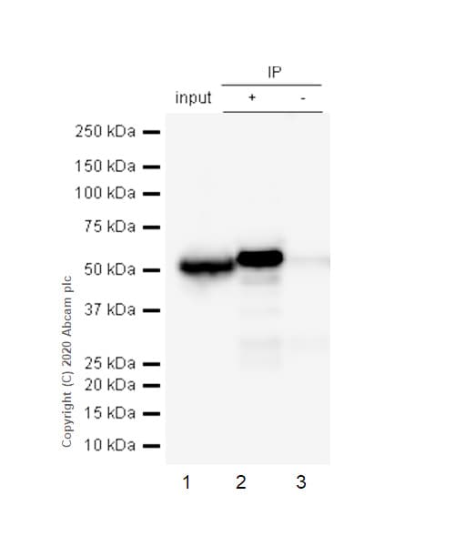 Immunoprecipitation - Anti-CCT2 antibody [EPR4084] (ab92746)