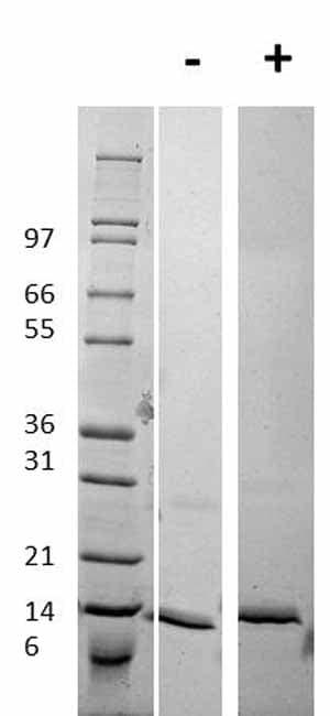 Western blot - Recombinant Human Procalcitonin protein (ab92843)