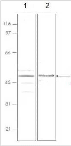 Western blot - Recombinant Human Lipocalin-2 / NGAL protein (ab92916)