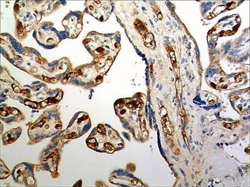 Immunohistochemistry (Formalin/PFA-fixed paraffin-embedded sections) - Anti-CCR6 antibody [MM0066-3L1] (ab93086)