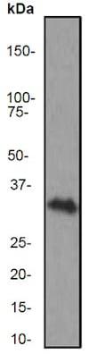 Western blot - Anti-CD8 alpha antibody [EP1150Y] (ab93278)