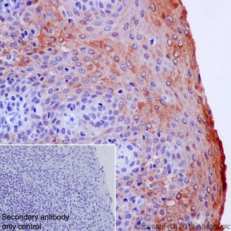 Immunohistochemistry (Formalin/PFA-fixed paraffin-embedded sections) - Anti-Cytokeratin 6 antibody [EPR1602Y] (ab93279)