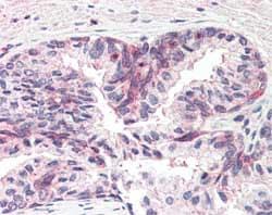 Immunohistochemistry (Formalin/PFA-fixed paraffin-embedded sections) - Anti-MSX1 antibody (ab93287)