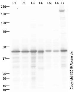 Western blot - Anti-Glutamine Synthetase antibody (ab93439)