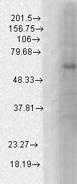 Western blot - Anti-GABRB1 antibody [N96/55] (ab93612)