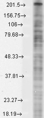 Western blot - Anti-Nav1.8/SCN10A antibody [N134/12] (ab93616)
