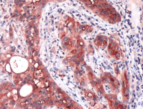 Immunohistochemistry (Formalin/PFA-fixed paraffin-embedded sections) - Anti-Mesothelin antibody [SP74] (ab93620)