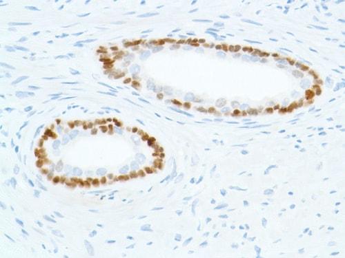Immunohistochemistry (Formalin/PFA-fixed paraffin-embedded sections) - Anti-SOX2 antibody [SP76] (ab93689)