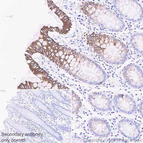 Immunohistochemistry (Formalin/PFA-fixed paraffin-embedded sections) - Anti-ErbB3 / HER3 antibody [SP71] (ab93739)