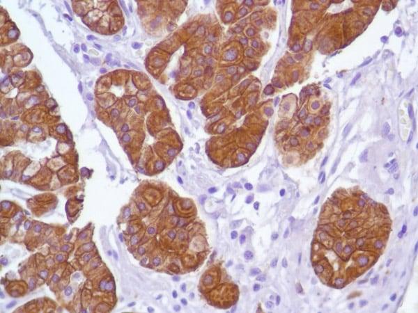 Immunohistochemistry (Formalin/PFA-fixed paraffin-embedded sections) - Anti-Cytokeratin 18 antibody [SP69] (ab93741)