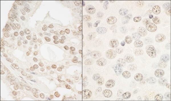 Immunohistochemistry (Formalin/PFA-fixed paraffin-embedded sections) - Anti-FOXP1 antibody (ab93807)