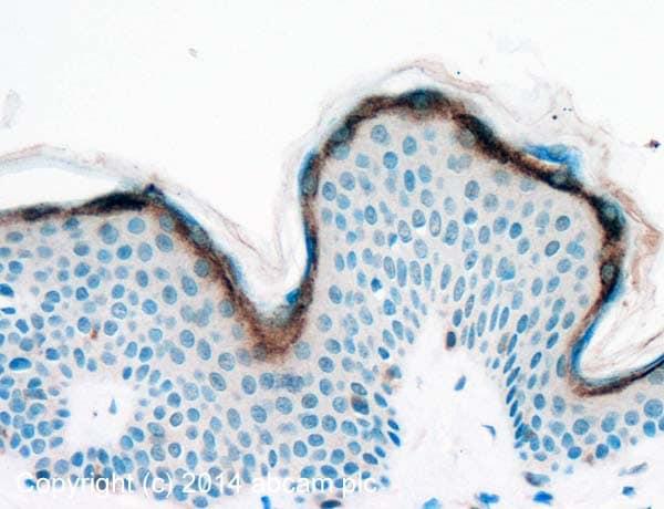 Immunohistochemistry (Formalin/PFA-fixed paraffin-embedded sections) - Anti-SLURP1 antibody (ab93840)