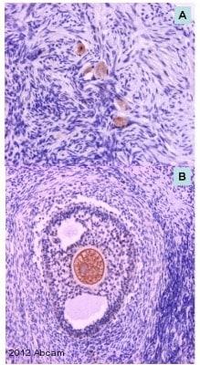 Immunohistochemistry (Formalin/PFA-fixed paraffin-embedded sections) - Anti-GDF 9 antibody (ab93892)