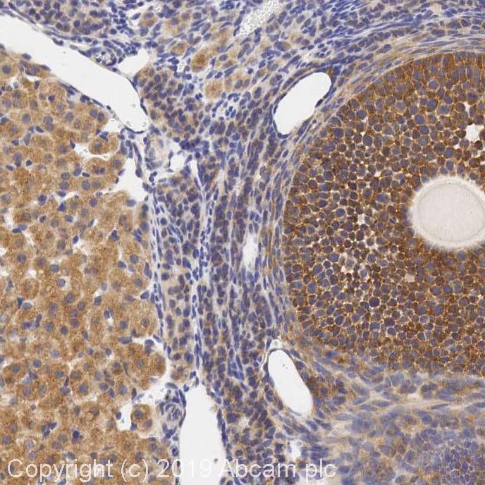 Immunohistochemistry (Formalin/PFA-fixed paraffin-embedded sections) - Anti-beta 3 Adrenergic Receptor antibody (ab94506)