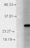 Western blot - Anti-KCNMB2 antibody [N53/32] (ab94589)