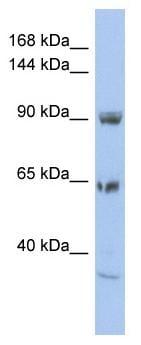 Western blot - Anti-TPCN1 antibody (ab94731)