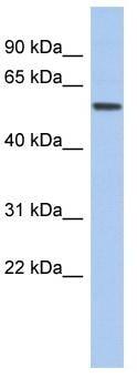 Western blot - Anti-EBF2 antibody (ab94791)