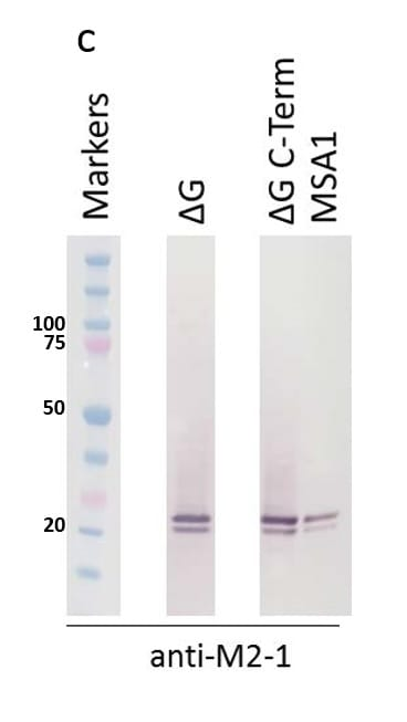 Western blot - Anti-Respiratory Syncytial Virus M2-1 Protein antibody [RSV5H5] - BSA and Azide free (ab94805)