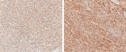 Immunohistochemistry (Formalin/PFA-fixed paraffin-embedded sections) - Anti-V5 tag antibody (ab95038)